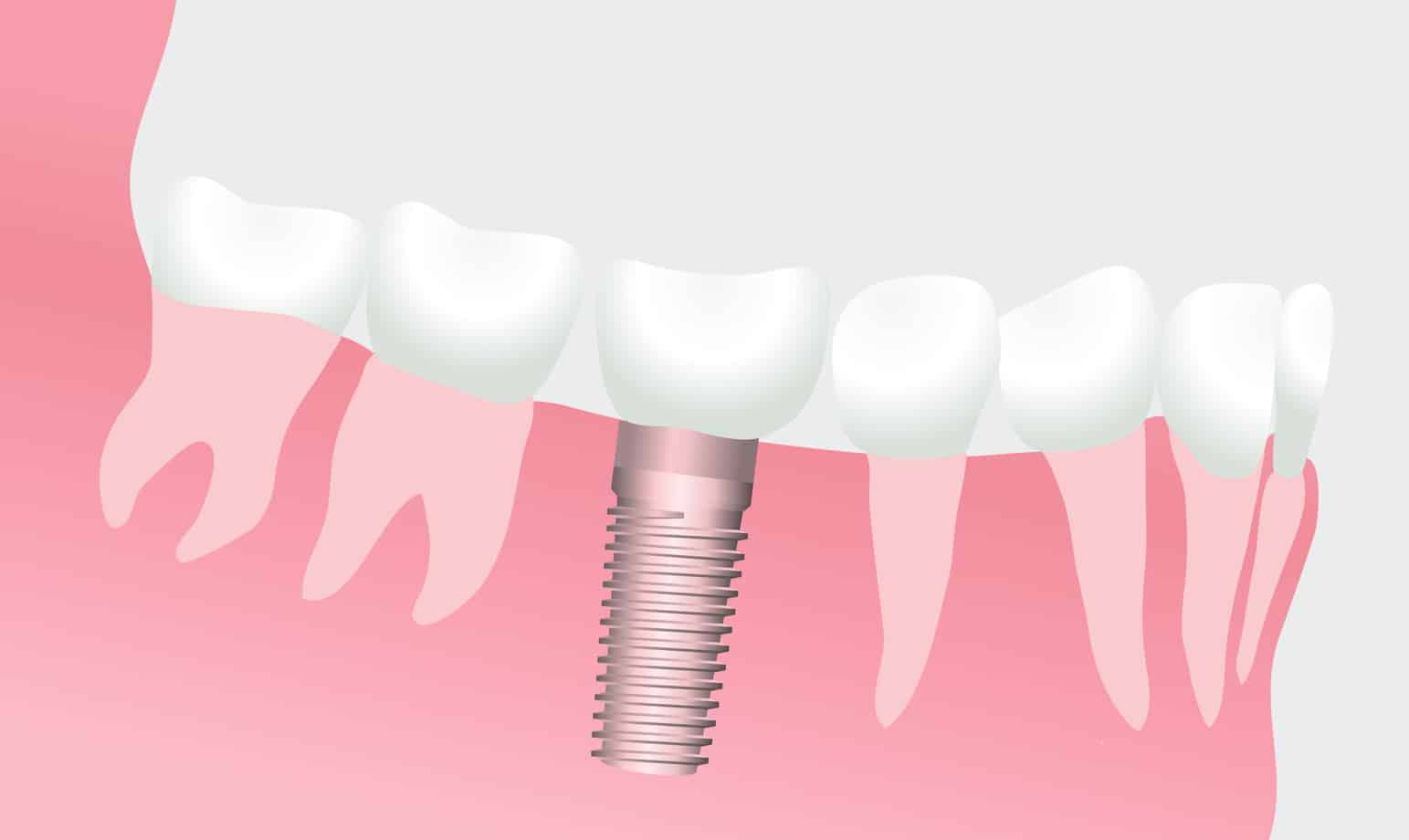 Illustration of a dental implant in a patient's gumline to replace a missing tooth