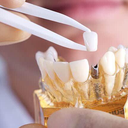 implant-example-min